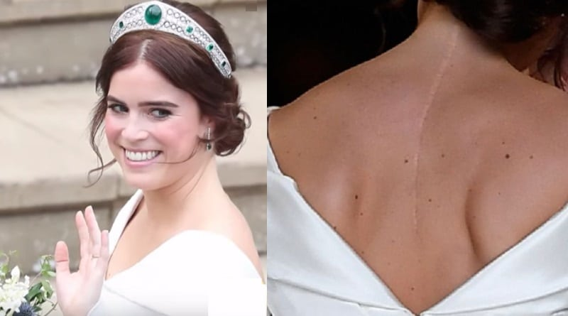 Princess Eugenie Scoliosis Scar in Wedding Gown - Royal Family News