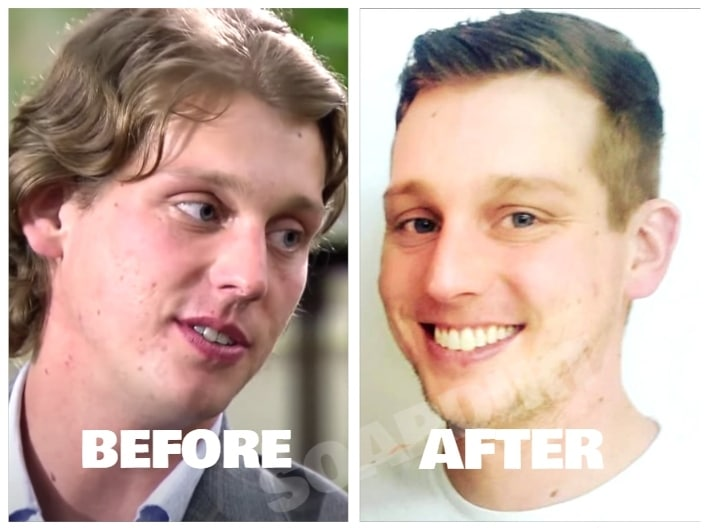 Married at First Sight: Austin Hurd - Before - After
